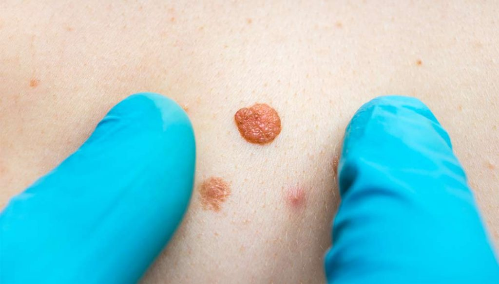 How To Remove Skin Tags Tom Drury