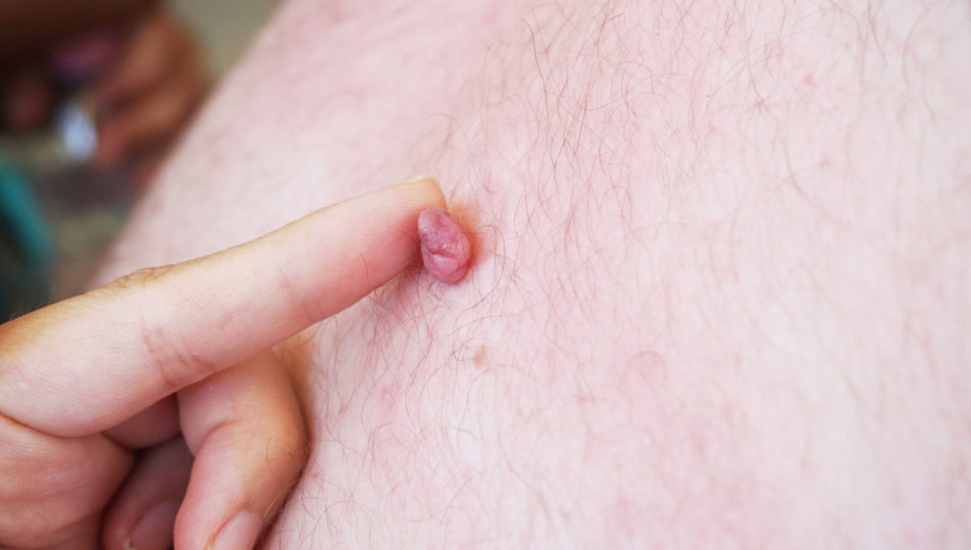 How to Remove Skin Tags?